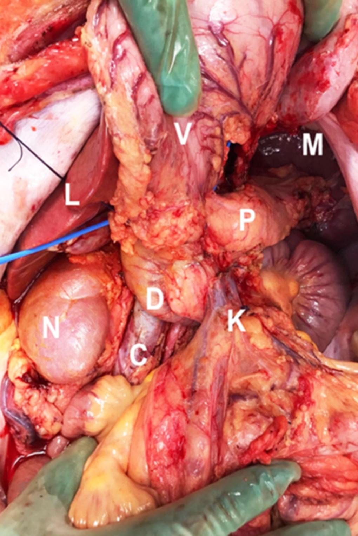 Figur 5. Bilde fra pancreasuttak. Sentralt sees corpus og cauda pancreatis (P). Milten (M) sees oppe til høyre. Duodenalsegmentet (D) med tilhørende uncinatus og krøsrot (K) er helt blottlagt. Kaudalt for duodenum sees litt av cava inferior (C). Høyre nyre (N) og lever (L) sees til venstre i bildet. Øverst ser man baksiden av ventrikkel (V). Colon transversum og ventrikkel er fridissekert fra pancreas og bursa.
