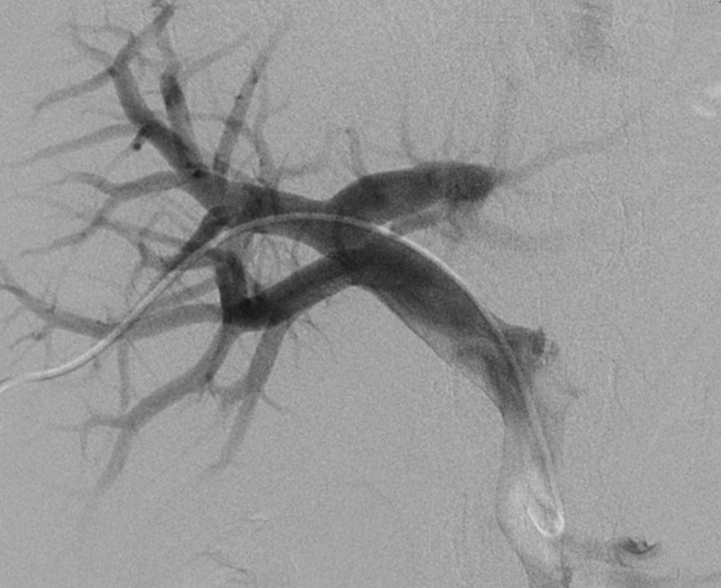 Figur 4: Innlagt perkutant transhepatisk portakateter .Cellene infunderes via dette kateteret, dette tar ca 30-40 minutter.