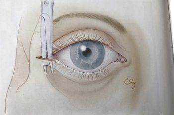 Figur 4: Ytterligere reduksjon av intraorbitalt trykk kan oppnås med påfølgende inferior cantolyse ved å rette saksen nedover og klippe nedre halvdel av ligamentet i nedre øyelokk.