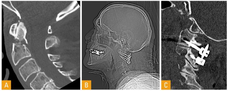 Figur 3. Densfraktur Type II med lettgradig posterior dislokasjon og diastase i frakturspalte, sagittalt CT snitt (A). Oversikt røntgen og CT sagittalt etter bakre skrue/stag fiksasjon C1 til C2 (B og C).
