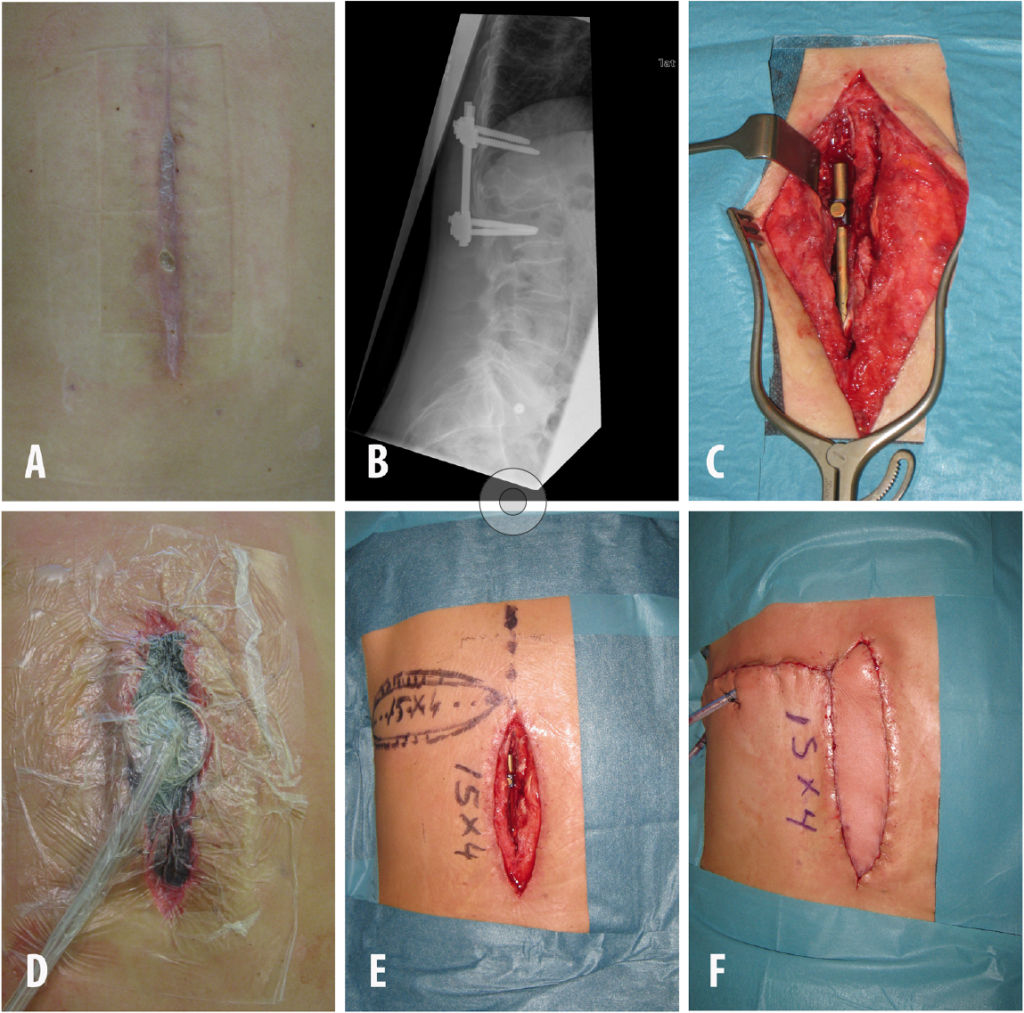Figur 2 Pasient med alvorlig reumatoid artritt som hadde en midtlinjedefekt med osteosyntesemateriale og dyp infeksjon. A: Væskende sår på overflaten. B: Osteosyntesemateriale. C: Revisjon og benprøve til dyrkning. D: VAC etter sårrevisjon. E: Defekt etter VAC med planlagt lappeplastikk. F: Etter transposisjon av MDICAP lapp.