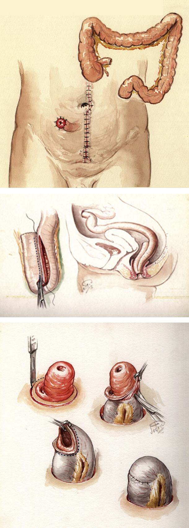 Figur 1: Tre operasjoner; først colektomi med iliostomi. Deretter rektum reseksjon med reservoar anleggelse, vanligvis etter 4-6 måneder, Til slutt lukning av iliostomi etter ytterligere 2-3 måneder.
