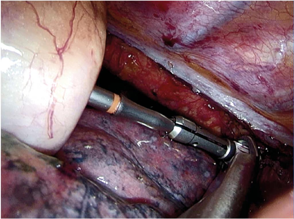 Fig. 8 Anastomose med sirkulær stapler