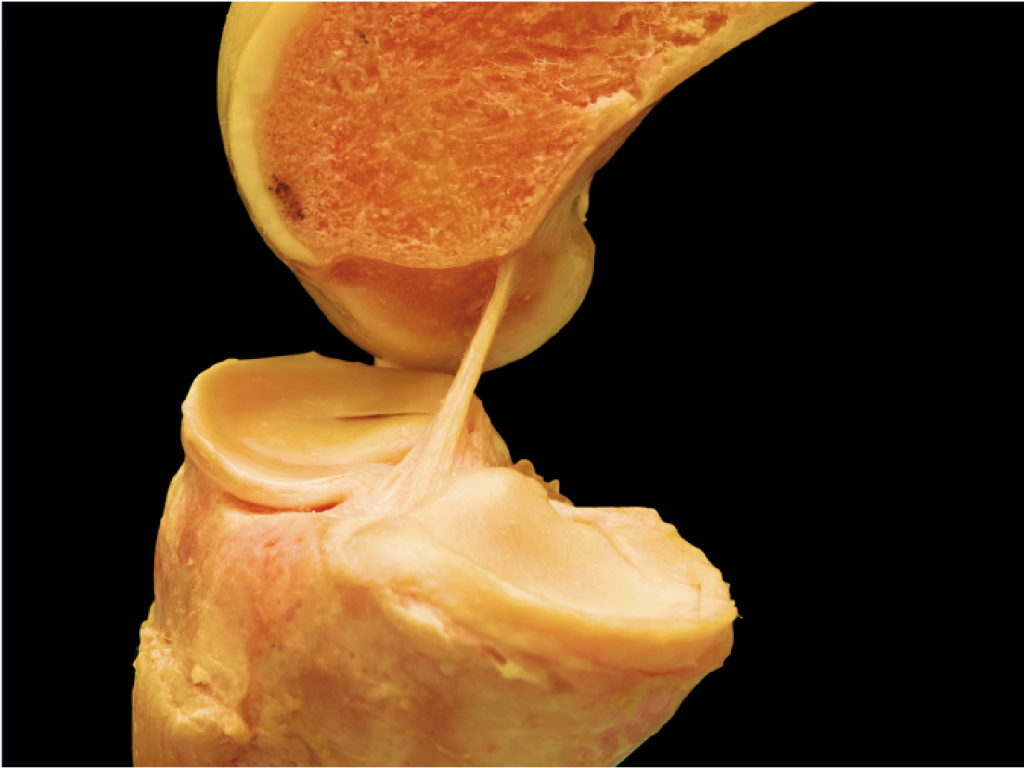 """Figur 1 – De anatomiske innfestingene av fremre korsbånd her ved bilder fra disseksjon utført av R. Smigielski. Den tidligere """"double-bundle"""" fortolkningen av ACL har blitt utfordret av studier som antyder en mer """"bånd-formet"""" strukturell organisering (Bilde: R. Smiegielski)"""