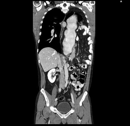 Figur 2. Kasuistikk 1 Kontroll CT mellom de to innleggelsene. Pasienten er her symtpomfri, i full jobb og trener spinning.