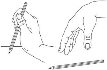 Skader på plexus brachialis