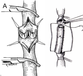 A: Klaffeplastikk og klaffetransplantasjon.