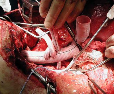 Figur 2: Implantasjon av Coselliprotese i thorakoabdominalt aneurisme. Protesen er anatomosert proksimalt mot aorta descendens og den første av protesens 4 grener er suturert mot a renalis dxt. Grenene sys deretter suksessivt på a mesenterica superior, truncus coeliacus og a renalis sin. Man kan se pefusjons-okklusjonskatetre i ostiene til disse. Det er reoperasjon, og en gammel dacron protese er delvis fjernet.