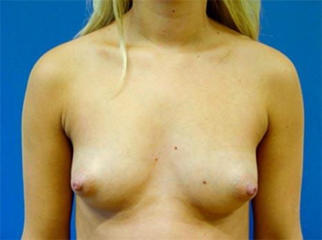 brystforstørrelse bbw com