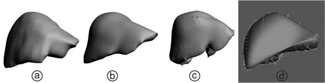 Figur 2: 3D-flatemodeller av lever laget ved hjelp av bildesegmentering av 3D-data. a) viser CT-data segmentert i programmet ITK-SNAP. b) viser MRI-data segmentert i programmet ITK-SNAP. c) viser samme MRI-data segmentert i programmet JVISION. Bilde d) viser ultralydsdata registrert ved tre-punkts sammensatt skanning. a), b) og c) er fra samme pasient og overflaten har blitt glattet i MeshLab.