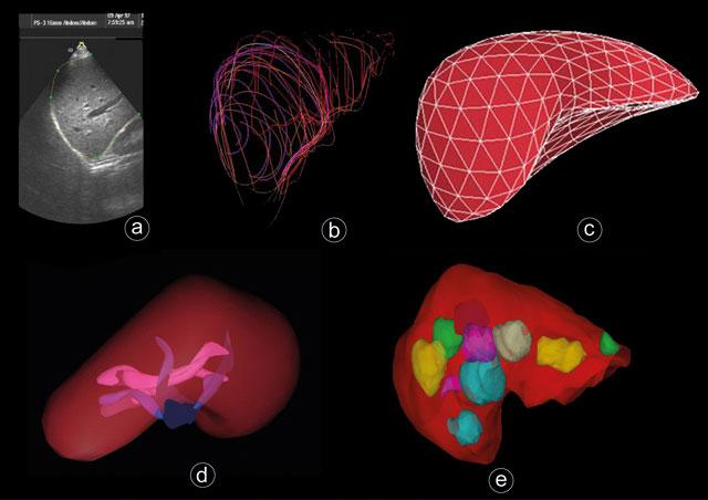 Figur 3: Ultralydbilder av leveren. a) viser tradisjonelt 2D(B-mode)-scan hvor leverkanten har blitt skissert. Denne type skissering kan brukes for å danne en 3D-rekonstruksjon (segmentering) av leveren som vist i b). c) viser overflatemodell til en lever i 3D. d) viser en 3D-visning av blodkar i lever hilum/hilus. e) viser svulster i leveren i 3D.