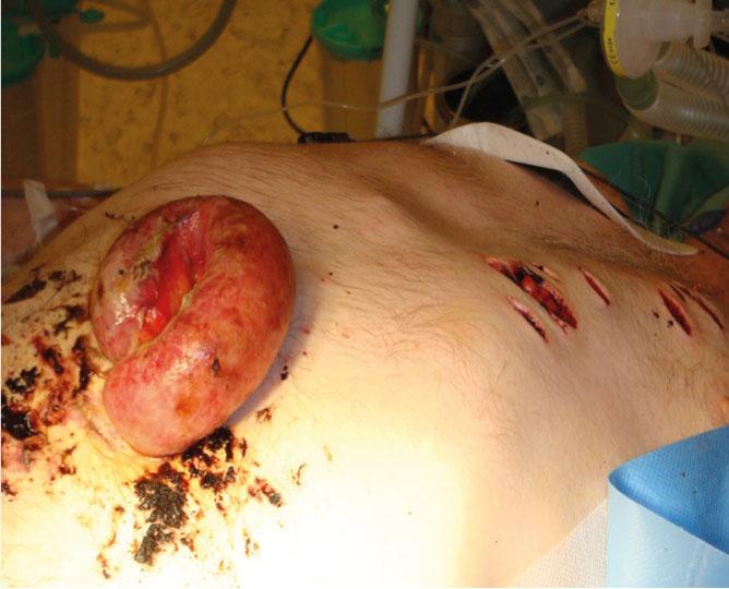 Bilde 3. Åpenbar laparotomiindikasjon: Penetrerende abdominalskade med prolaberende tynntarmslynge. Thoraxskadene ble revidert og drensbehandlet.