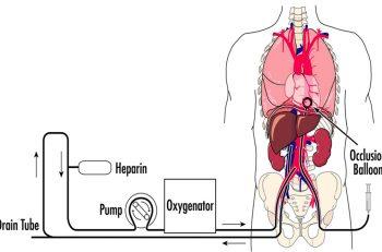 Figur 1. Prinsipp for cDCD med ECMO krets. (J Trauma 2005, med tillatelse fra Wolters Kluwer Health)