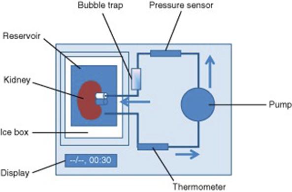 Figur 2. Prinisippskisse kald maskinperfusjon
