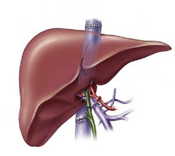 Figur 2. Viser opprinnelig teknikk ved levertransplantasjon, hvor vena cava ble delt ovenfor og nedenfor leveren. Den nye leveren ble så sydd inn med ende til ende cavaanastomoser som vist på figuren.