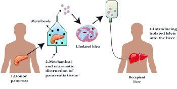 Figur 2: Illustrasjon av prosedyren fra isolering av øyer fra pankreas donororgan til intraportal infusjon av øyene i resipient med T1D.