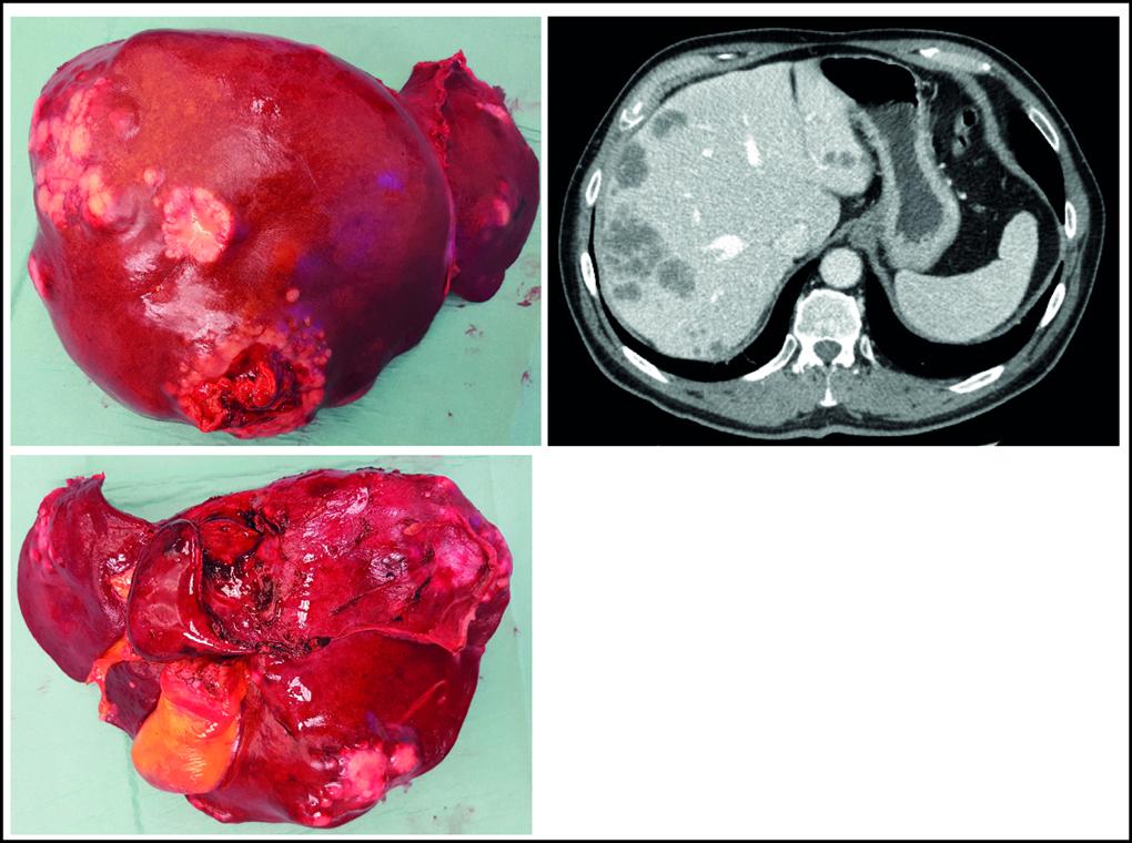 Figur 2. CT bilde og eksplantert lever fra pasient i SECA 2 studien.