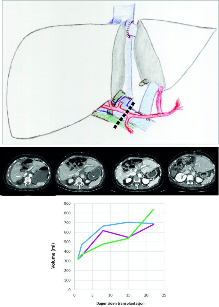 Figur 4. RAPID studien. Øverst: Illustrasjon etter 1. seanse: Venstre del av lever er ressesert og et segment II/III graft transplantert. Man sikrer at trykket i vena porta er under 20 mmHG før man setter av vena porta til pasientens resterende porta med vaskulærstapler (Stiplet linje) for å stimulere vekst av transplantatet. Høyre lever forblir på plass for å unngå leversvikt. Når man har oppnådd adekvat volum av transplantatet kan høyre lever fjernes i 2. seanse. Midten: Vekst av transplantat og fjerning av høyre lever på CT bildene fra en pasient i studien. Nederst: Vekst i transplantatets volum fra transplantasjon fram til 2. stadies hepatektomi for de tre pasientene som til nå er inkludert i studien.