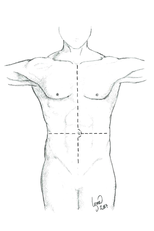 Figur 1. Donorlaparotomi og sternotomi.