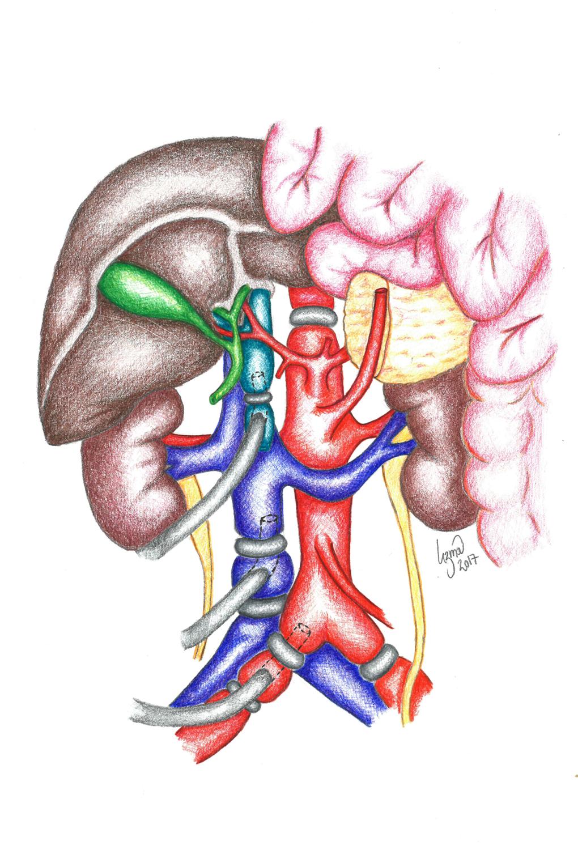 Figur 2. Cattell-Braasch manøver for eksponering av de store karene på bakre bukvegg. Ligaturer er satt for isolert kald perfusjon av bukorganer gjenom aorta og vena porta, mens drenasje av varmt blod fra vena cavainferior.