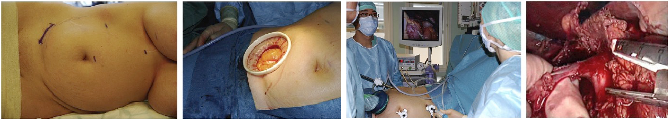 Bilde 2: Høyresidig håndassistert nefrectomi via høyresidig transplantasjonssnitt.