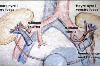 Bilde 2. Typisk plassering av nyregraft i fossa illiaca: Venstre nyre: arterieanastomose mot A. illiaca externa. Høyre nyre med cavaplastikk som forlengelse av venen, arterieanastomose mot A. illiaca interna