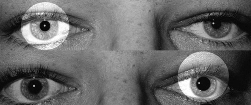 Figur 1: «swinging flash light test» utført der det foreligger en relativ afferent pupilledefekt på pasientens venstre øye. Lyskilden føres fra det ene til det andre øye gjennom en pendlende bevegelse. Normal respons er lik konstriksjon av begge pupiller, i dette tilfellet observerer man dilatasjon ved belysning av venstre side pupille.