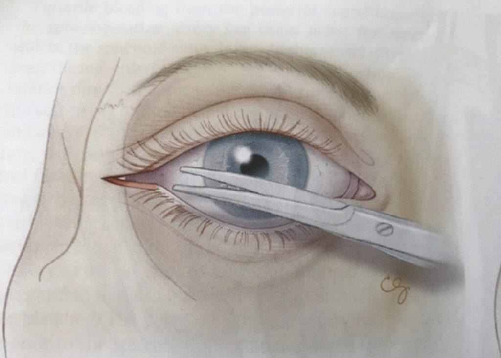 Figur 3: Lateral cantotomi. Øyet beskyttes med uskarpt instrument. En skarp saks føres over laterale cantus helt til man støter mot beinkanten. En klipper så gjennom huden og underliggende cantalligament.
