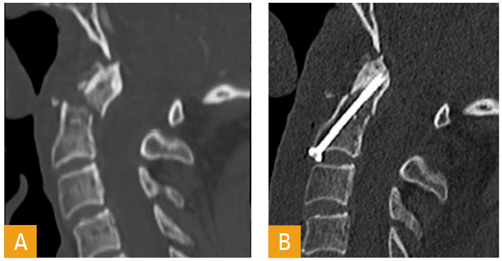 Figur 4. CT sagittalsnitt av en dislosert densfraktur Type II (A). Samme fraktur og snittføring etter reposisjon ogfiksasjon med densskrue, fremre tilgang (bevarer bevegelighet mellom C1 og C2) (B).