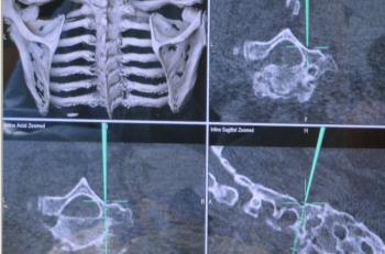 Figur 1. Spinal navigasjon