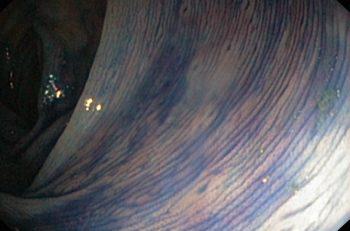 Bildet viser kolon transversum farget med indigo karmin. De små lesjonene en ser er lymfoide follikler.