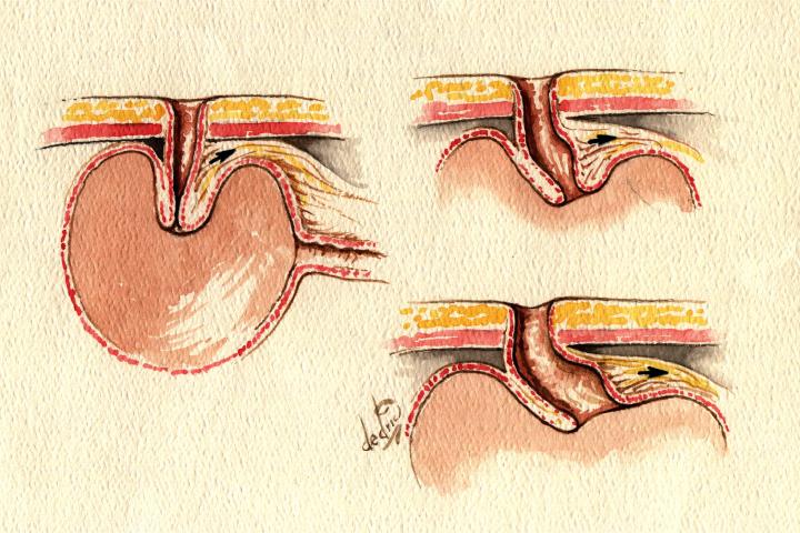 Figur 4. Nippelglidningen