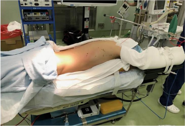 Fig. 1 Pasient i mageleie for thorakoskopisk øsofagusreseksjon