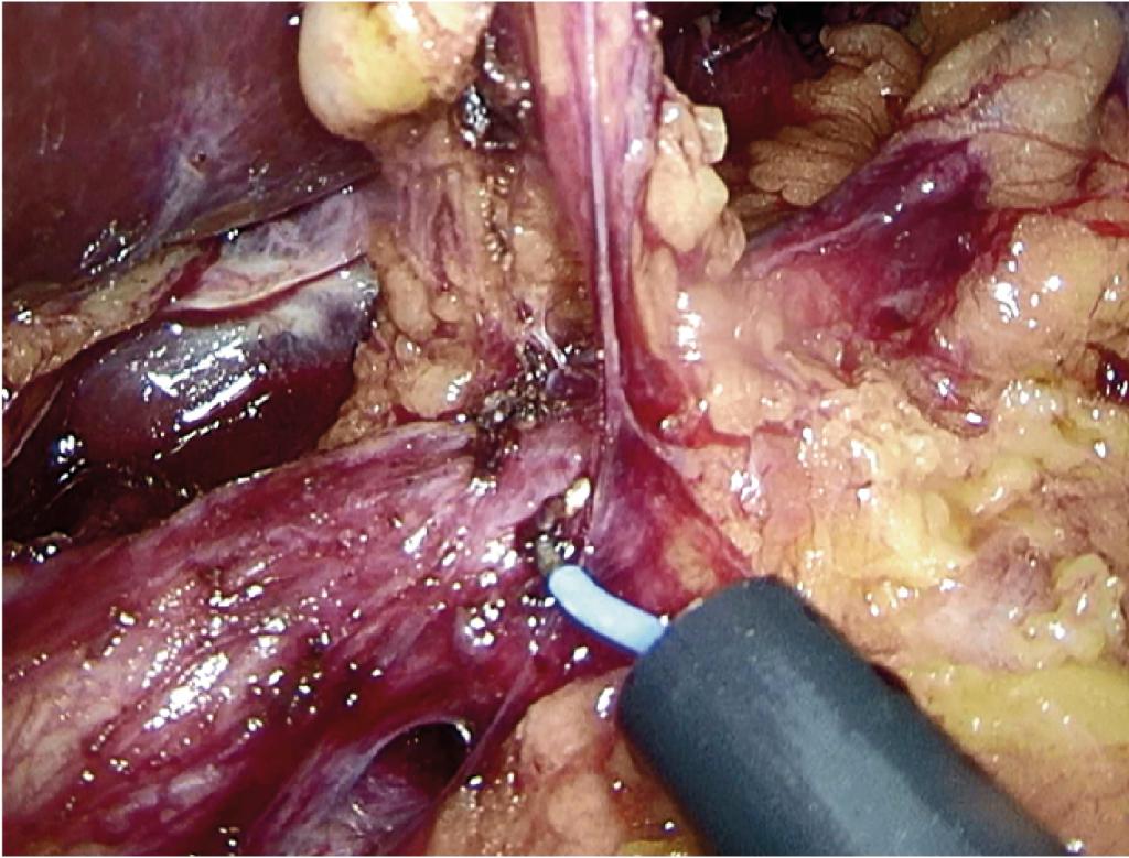 Fig. 4 Lymfadenektomi langs a. hepatica communis