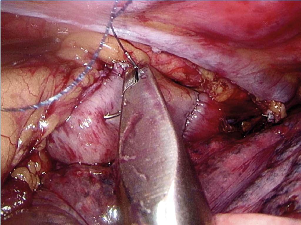 Fig. 9 Invertering av sideløpet på ventrikkelen med sutur. Anastomosen ses oppad