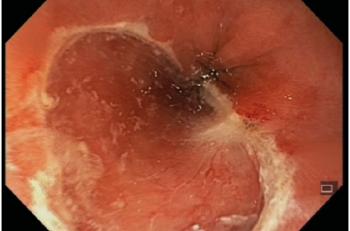 Figur 1. Gummibånd EMR hos pasient med dysplasi i Barretts øsofagus
