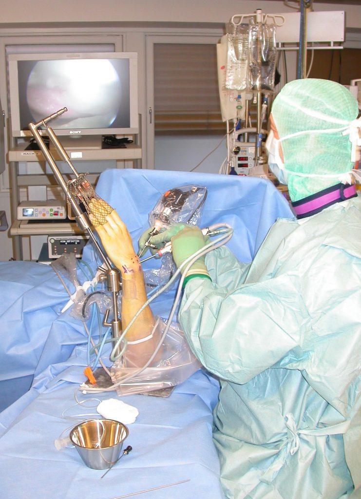 Figur 1. Oppsett for håndleddsartroskopi. Vi bruker et tårn som strekker ut håndledd og midtkarpal ledd. Tårnet tillater fleksjon i håndleddet og gir god støtte sideveis pga en bøyle. Vi bruker fingerstrekk på samtlige fingre for å utjevne drag på hver finger. Vi bruker ikke væske for å utvide leddet, men bruker luft, og har tilgjengelig væske for å spyle rent for evt blod og små bruskbiter eller synovium som vi fjerner vha en shaver. Ved behov for TV gjennomlysning kan vi sette fluoroskopet i en horisontal posisjon, eller vi kan legge ned armen.