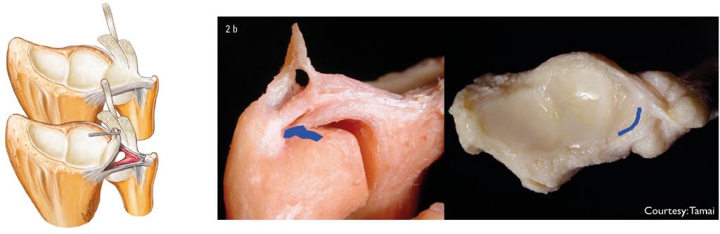 Figur 2. a) Distale radioulnarledd sett fra dorsalsiden. På figuren øverst ser man leddflatene tilsvarende skafoidfasetten og lunatumfasetten distalt på radius. Videre ser man overgangen til TFCC (se tekst) samt de palmare ligamentene mellom ulna og respektive lunatum og trikvetrum. Palmart for disse ligamentene løper det ulnokapitat ligamentet. Hele TFCC komplekset er visualisert med det dorsale og det palmare DRU ligament. På den nederste figuren er selve bruskkomplekset løftet opp for å illustrere at DRU ligamentene fester både til spissen på den ulnare styloid og til fovea ved basis av styloiden. (Fra: Hand Clinic. Se ref. 10). b) På disse bildene fra disseksjonsstudier er det til venstre illustrert hvor en DRUL avrivning fra fovea foreligger, mens på bildet til høyre ser man radius og TFCC fra distalt og i proksimal retning hvor det er illustrert hvor man oftest finner en avrivning av TFCC fra kapsel (dorso-ulnart). (Courtesy: Makato Tamai).