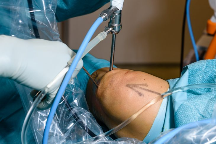 Figur 2. Artroskopi av kne. Inngrep i lokal- eller generell anestesi. Anterolateral skop-portal og anteromedial arbeidsportal. Lavage i leddet med ringer-acetat. (Foto: Øystein Horgmo, UiO).