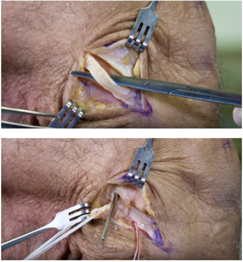 Figur 4 – Lateral ekstraartikulær tenodese med bruk av et graft fra midtre del av traktus iliotibiale som tunnelleres under laterale kollateralligament. En slik prosedyre er effektiv for å kontrollere stor rotasjonsinstabilitet ved fremre korsbåndskirurgi (Bilde: E. Inderhaug)