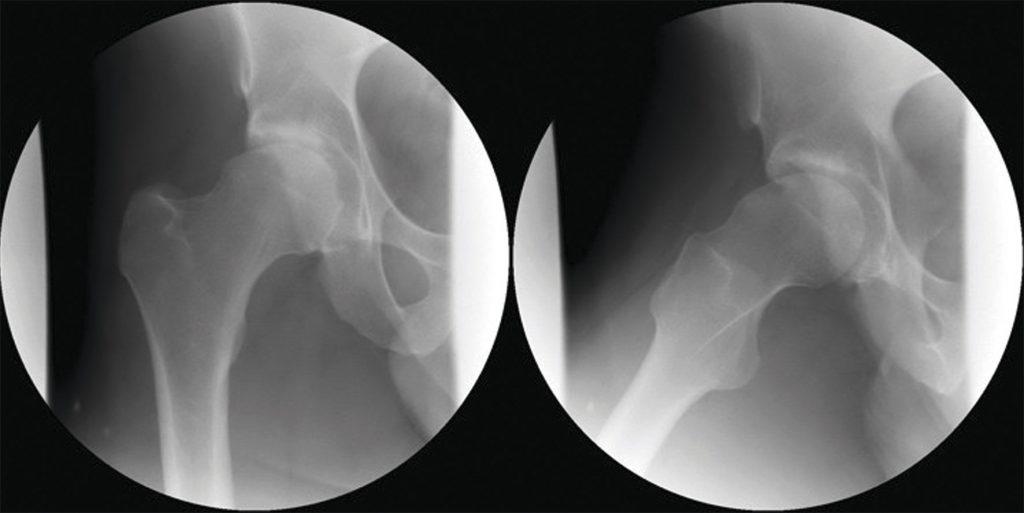 Figur 4. Røntgen bilder ved camimpingement.