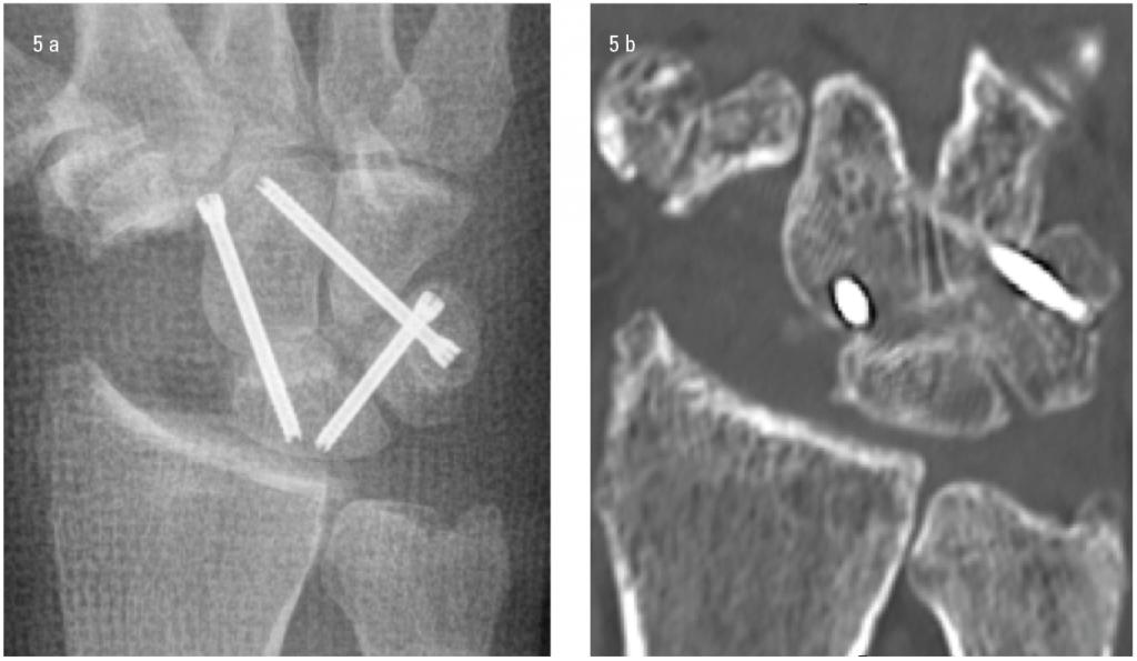 Figur 5. a) Dette postoperative røntgenbildet viser plassering av skruer ved en såkalt firebensartrodese i karpus.  Etter fjerning av brusk og sklerose midkarpalt reponeres knoklene til korrekt stilling, deretter plasseres pinner til HCS før vi fyller opp med beintransplantat i spaltene. Skruene settes deretter på plass via små incisjoner. b) Denne CT undersøkelsen viser at det er overbyggende beinbroer mellom knoklene i karpus.