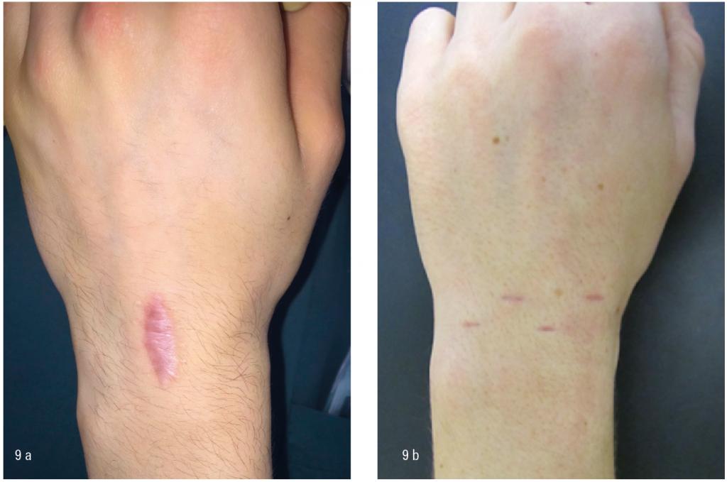 Figur 9 a) Et dorsalt ganglion blir ofte fjernet via et langsgående dorsalt snitt. Dette kan ofte gi kosmetisk sett sjenerende arr. b) Et ganglion som blir fjernet med en artroskopisk assistert teknikk har som regel små arr som blir kosmetisk sett mer tilfredsstillende for pasienten.