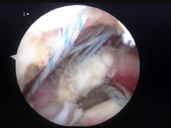 Figur 3. Illustrasjon av sutur ved en omfattende degenerativ rotatorcuffruptur. Skopet er plassert subakromialt.