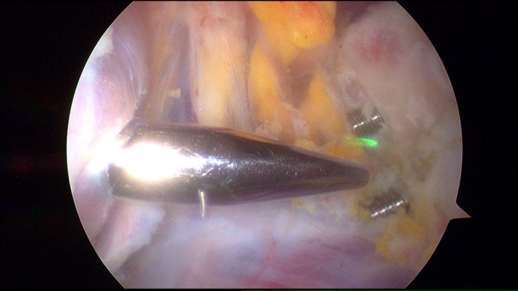 Figur 5. Fra artroskopisk Latarjet. Fra venstre i bildet kommer en ledestang som  kommer fra glenohumeralleddet gjennom musculus subscapularis. Rett bak ledestangen ser man nervus axillaris. Til høyre i bildet ses coracoid som føres inn med  to kanulerte metallhylser.