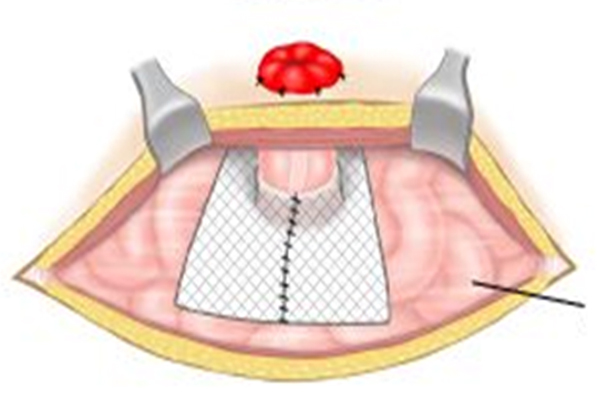 Figur 1: Ekstraperitonealt nett – åpen kirurgi