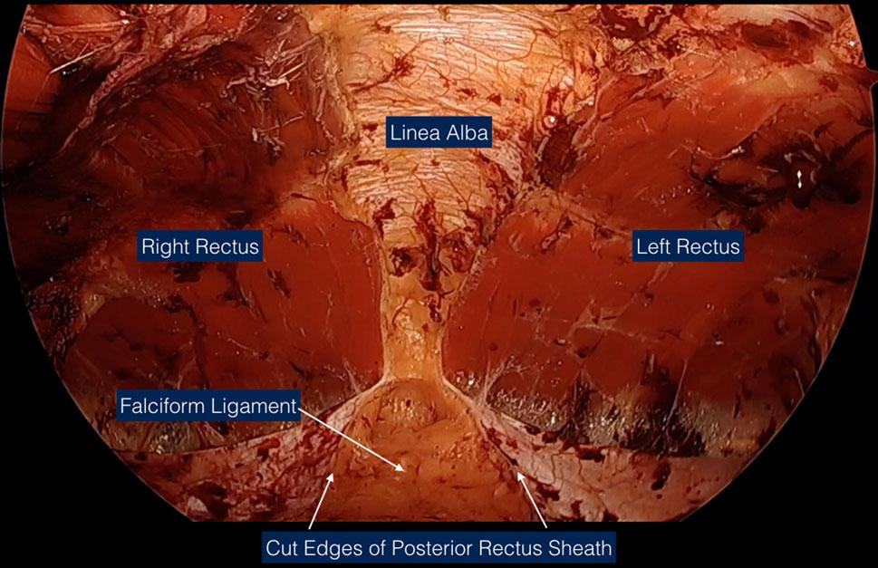 Figur 3. eTEP disseksjon (med tillatelse fra Dr. Belyansky)