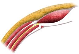 Figur 4: Transversus abdominis release