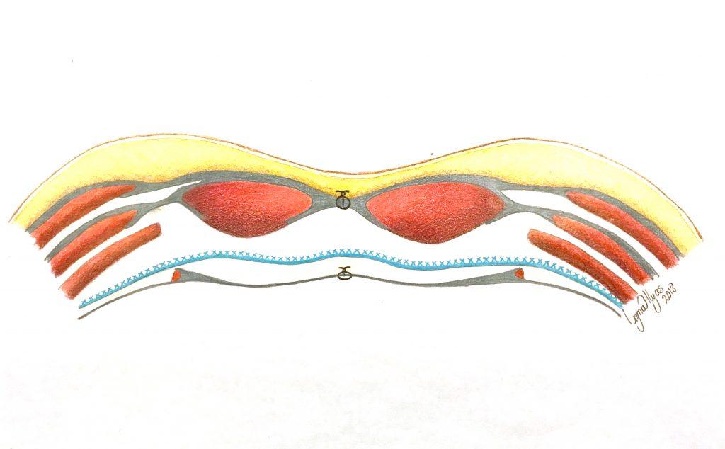 Figur 4. Tverrsnitt av bukvegg etter TAR-prosedyre med nett i blått. (Illustrasjon: Uzma Ilyas)