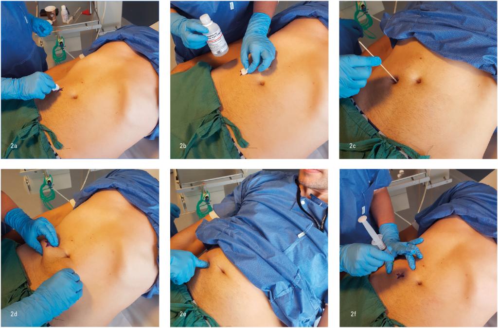 Figur 2a-f. Illustrasjon av hvordan man undersøker en pasient med mistenkt ACNES TH 10 hø side. Se artikkel for beskrivelse